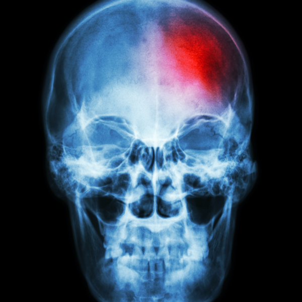 Red pain mark on skull x-ray