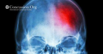 Red pain mark on skull x-ray